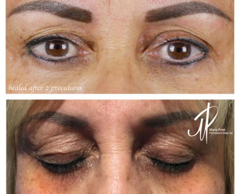 Dermapigmentation
